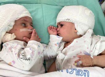 Σιαμαία αδερφάκια είδαν το ένα το άλλο για πρώτη φορά μετά την 12ωρη επέμβαση διαχωρισμού